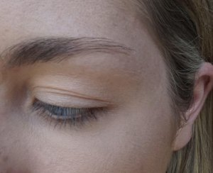 eyebrow before