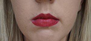 lip filled in